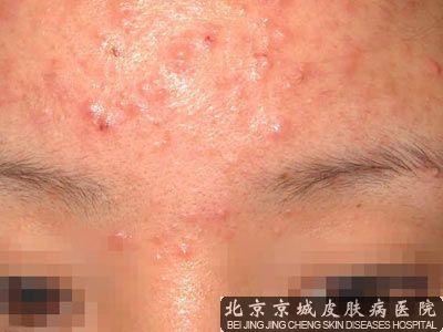 青春痘去看中医科还是皮肤科