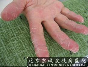 手季节性脱皮怎么办