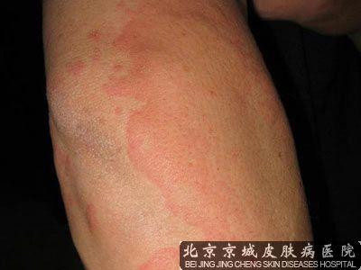 皮肤脱敏治疗有效吗