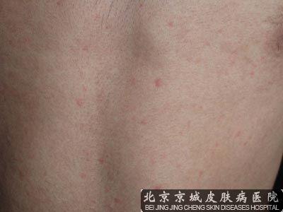 风疹病毒该怎么检测