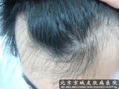 治疗头发脱落